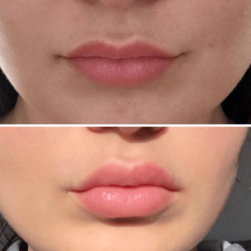 botox lip flip cost