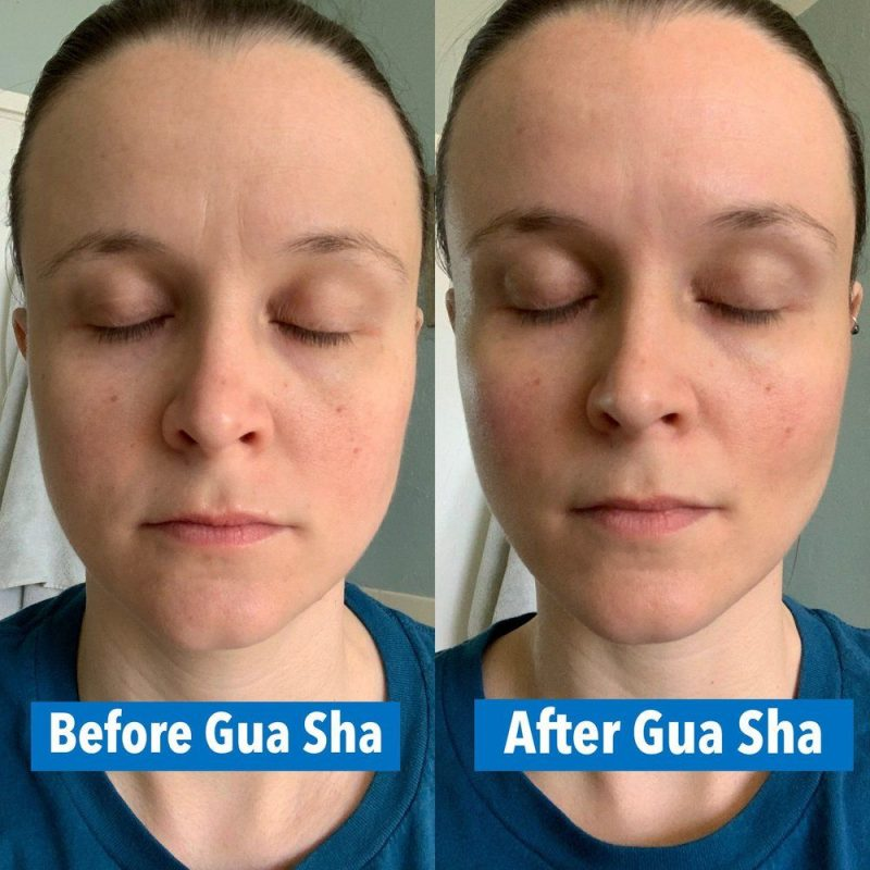 before and afte gua sha