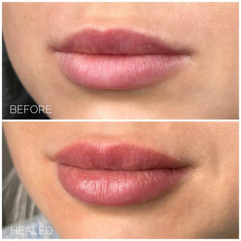 Lip blushing risks