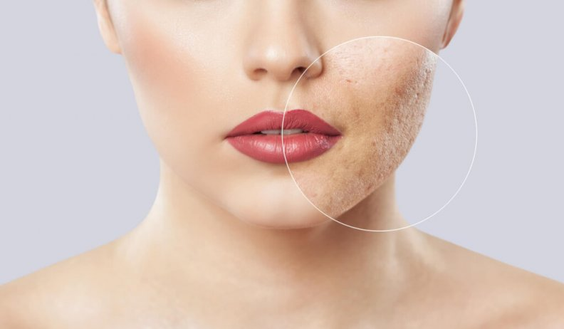 Acne Mapping: Acne Placements, What It Means and How To Treat It!