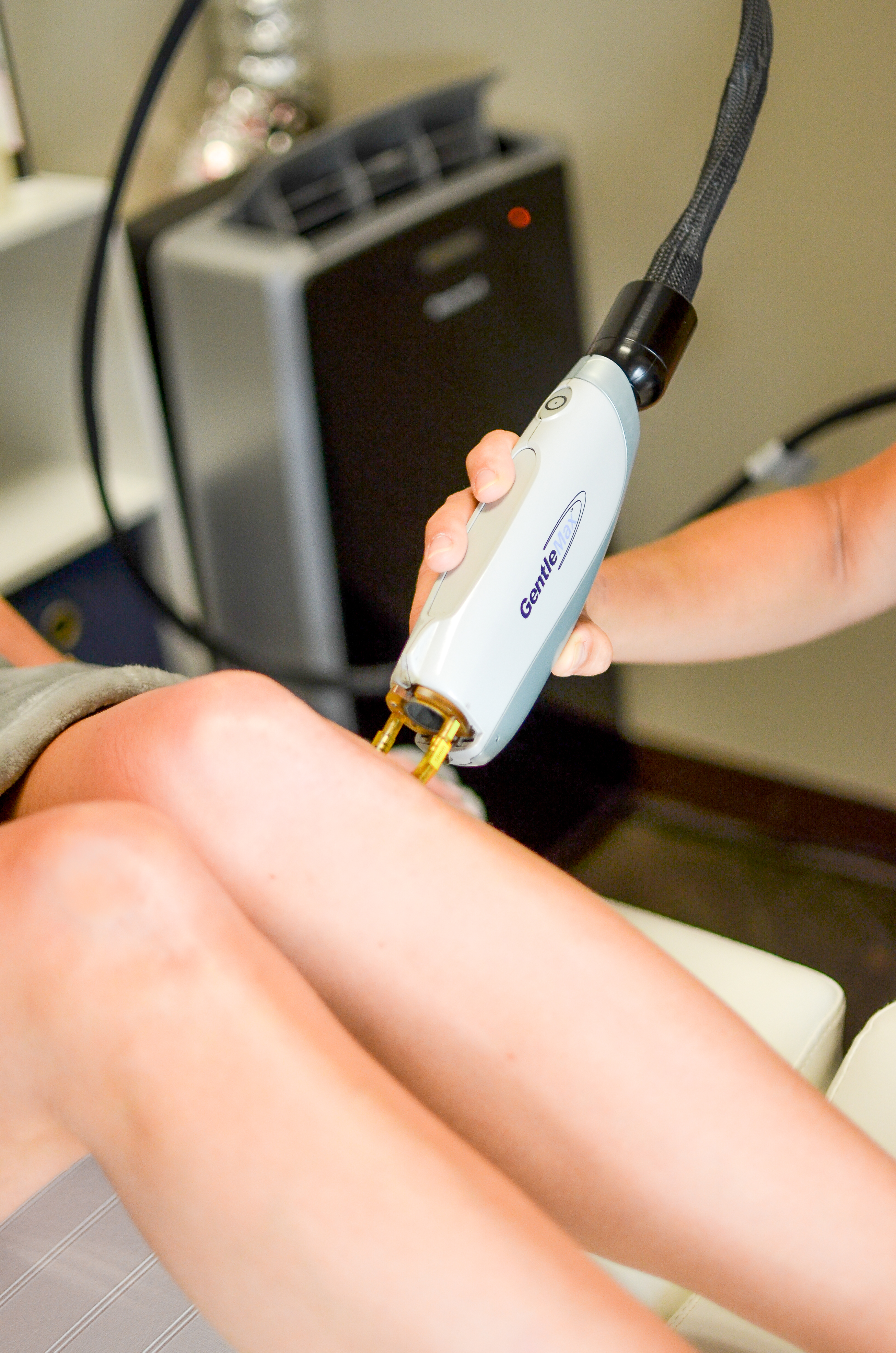 celebrity-style-hair-removal-laser